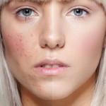 acne_skin
